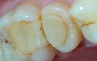 Больно нажимать на зуб после пломбирования каналов