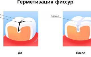 До скольки лет у детей молочные зубы