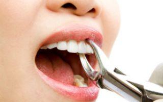 Выдернули зуб опухла щека что делать