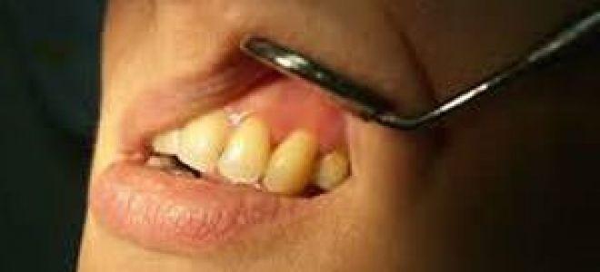 Киста на зубе лечение или удаление
