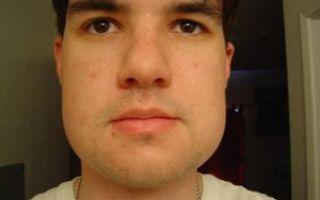 После удаления зуба опухла десна и щека