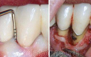 Зубная щетка с ультразвуком