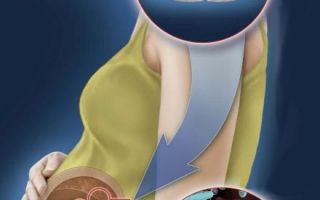 Воспаление десен лечение антибиотиками