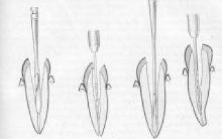 Препараты для лечения периодонтита
