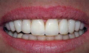 Почему не приживается имплант зуба