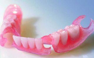 Привыкание к съемным зубным протезам