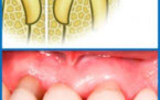 Пародонтоз или пародонтит разница