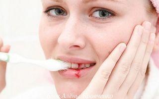 Почему десна болят и кровоточат