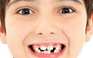 Порядок прорезывания постоянных зубов