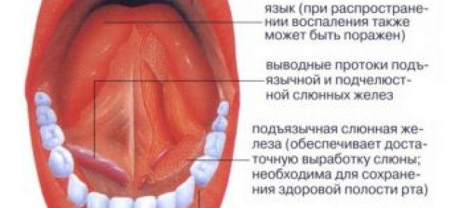 Раздражение под языком