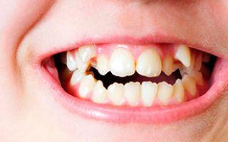 У ребенка растут кривые зубы