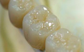 Коронки из диоксида циркония на жевательные зубы