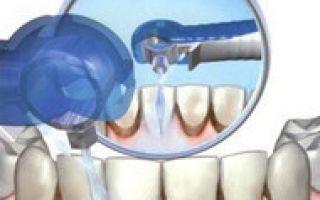 Зубной камень удаление ультразвуком