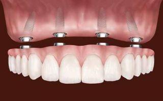 Какие есть зубные протезы