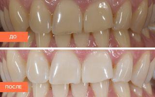 Отбеливание зубов зум