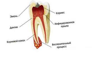 Воспаление корня зуба лечение