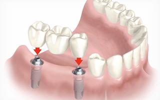 Имплантация зубов поэтапно