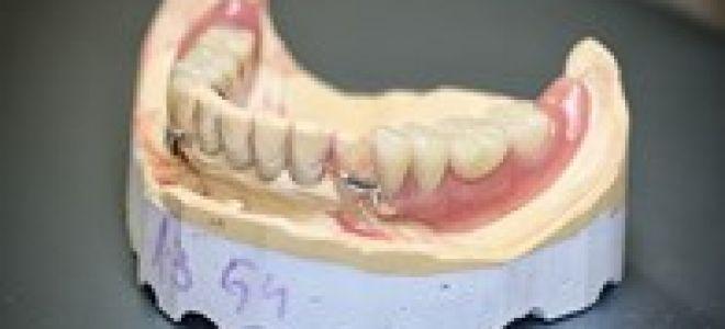 Болит челюсть когда жуешь