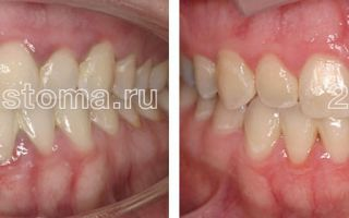 Какой врач удаляет зубной камень