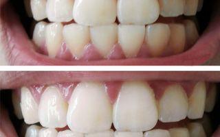Полоски для отбеливания зубов crest 3d white