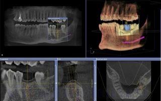 Снимок молочных зубов