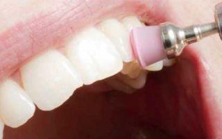 Лучший способ чистки зубов