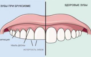 Скрип зубами