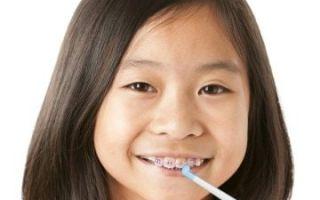 Когда ставят брекеты на зубы