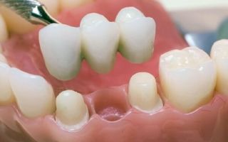 Какие зубы лучше металлокерамика или металлопластмасса