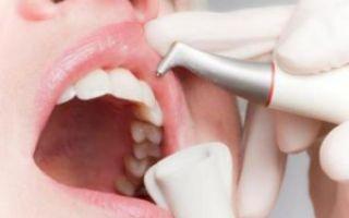 Профессиональная чистка зубов методом air flow