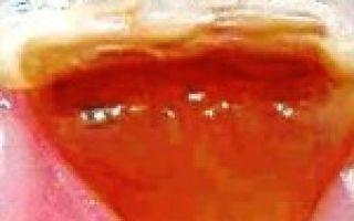 Помогает ли анальгин при зубной боли