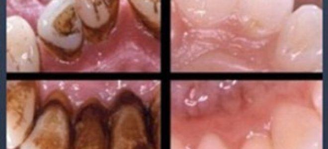 Профессиональная чистка зубов что это такое