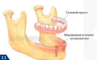 Мягкие съемные зубные протезы