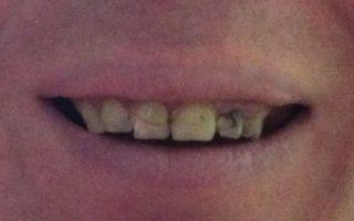 Больно ли обтачивать зубы под металлокерамику