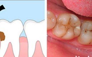Обязательно удалять зуб мудрости