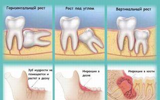 Сколько зубов мудрости бывает у человека