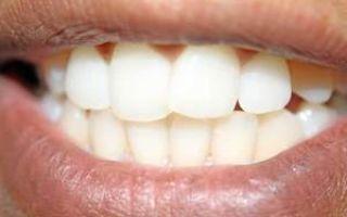 Можно ли восстановить эмаль на зубах