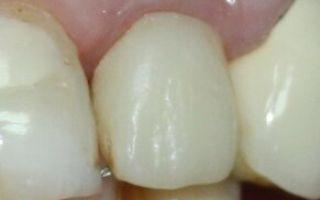 Сколько времени занимает установка импланта зуба