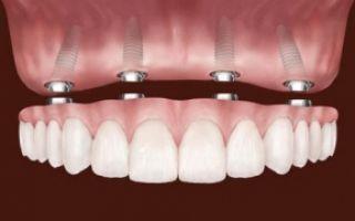Микропротезирование зубов что это такое