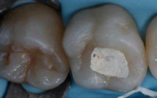 Что делать если вылетела пломба из зуба