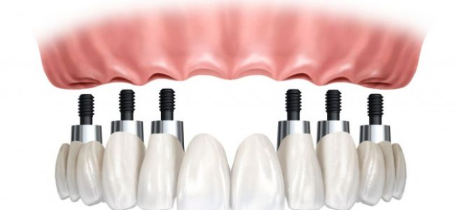 Протезирование передних верхних зубов