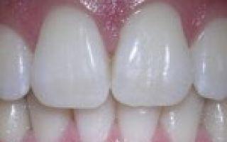 Наращивание зуба как это происходит