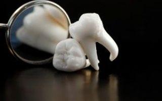 5 верхний зуб сколько каналов