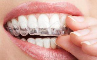 Что делают брекеты с зубами