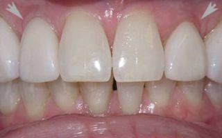 Фарфоровые зубы положительные и отрицательные стороны