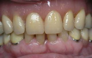 Телескопические зубные протезы