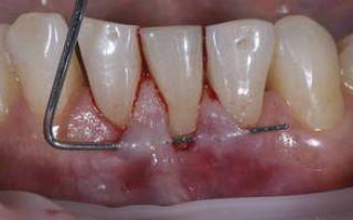Чем полоскать рот если опухла десна