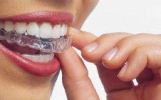 Дырка между передними зубами как исправить