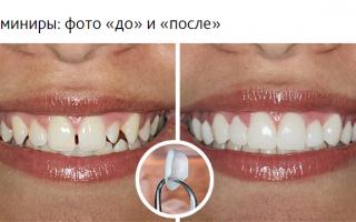 Накладки на передние зубы