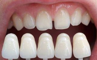 Выровнять зубы в домашних условиях